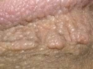 gemital warts picture 11
