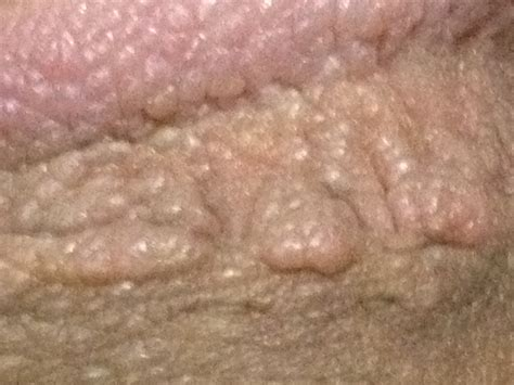 picture genital warts picture 11