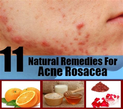 pure herbs acne problems picture 11