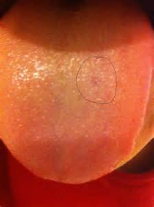 dark patches on penis head picture 1