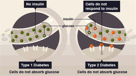 what causes a person blood sugar level not picture 6