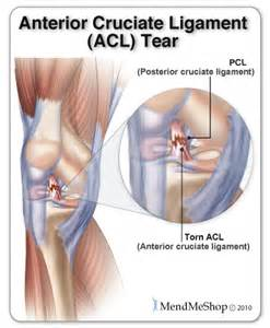 care for muscle tares and sprains picture 13
