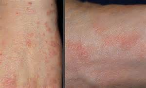 skin condition mrsa boils picture 5