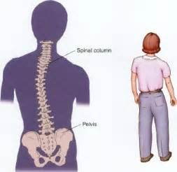 scoliosis back and neck stiffness el disorders picture 17
