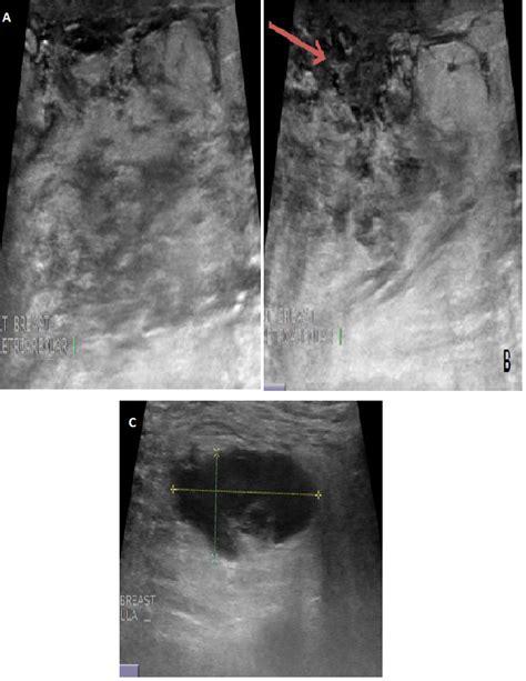 breast echotexture picture 6
