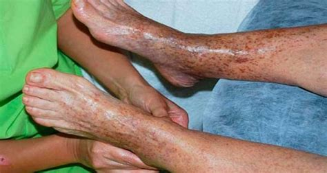 poor blood circulation affects implatation? picture 9