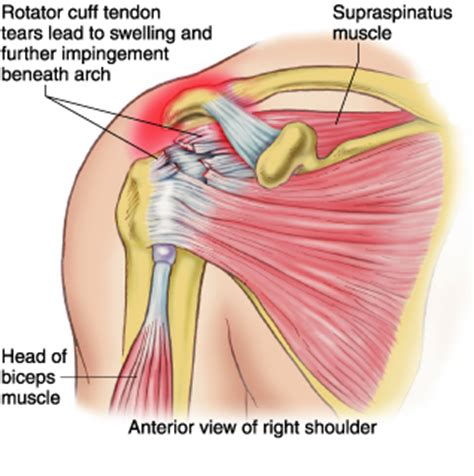 do torn attachments of the pectoralis muscle need picture 23