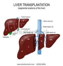 where is the most liver transplants done picture 8