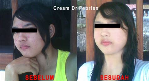 cream dokter dr febrian picture 15