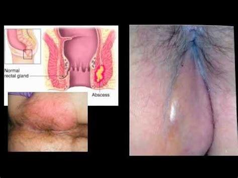 carbuncle treatment picture 1