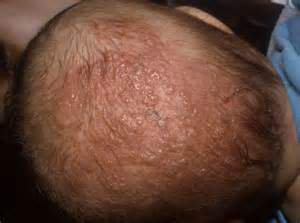 herpes zoster shingles picture 2