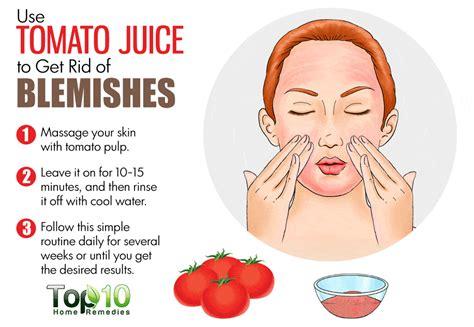 acne treatment aloe free picture 17