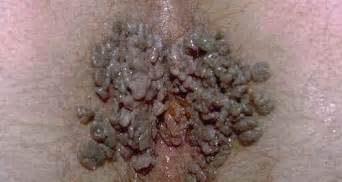 lipitor and skin rash picture 5