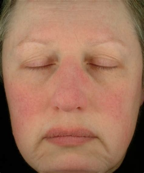 does acne cause redness of the face picture 13
