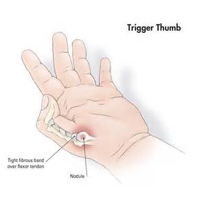 sore thumb joint picture 7