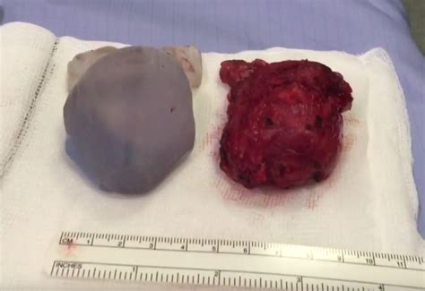 Prostate cancedr picture 1