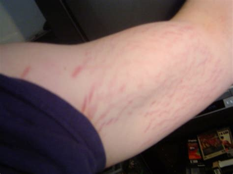 stretch marks on arms picture 2