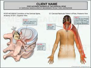 can a pinched nerve cause loss of erection picture 10
