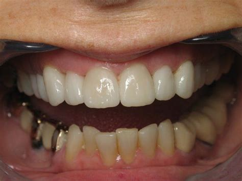 silver spring teeth crown picture 15
