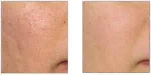 skin needling in for acne scars in california picture 9