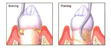dentist take out teeth picture 6