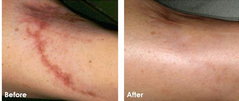 coolbeam laser surgery for stretch marks picture 2