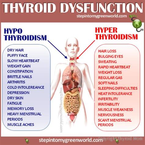 hypo thyroid disorder picture 9