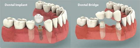 rockville teeth crown picture 1