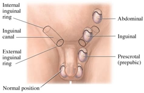 gluing tuck of penis picture 7