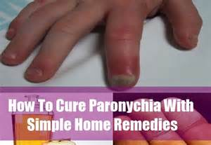 paronychia infection home remedy picture 1