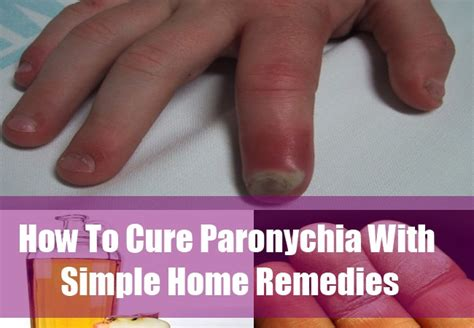 how to cure pigsa home remedy picture 1