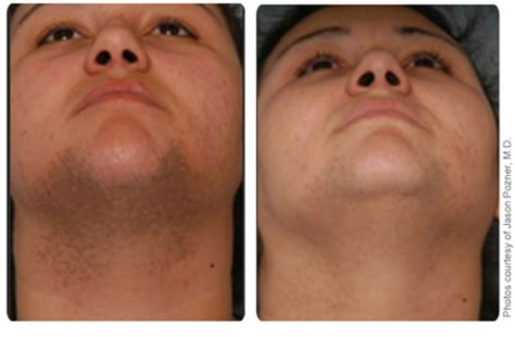 laser hair removal nj picture 2