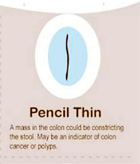 why is a thin stool a sign of colon cancer picture 11