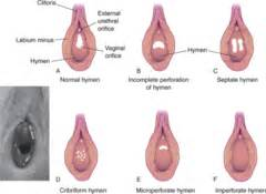 What does the prostate do picture 10