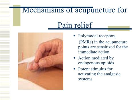acupuncture pain relief picture 1