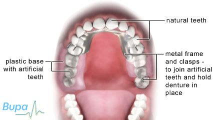 different types of false teeth picture 15
