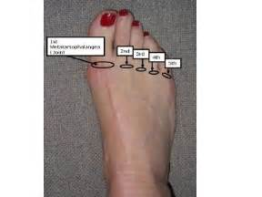 injury to mtp joint of fifth metatarsal picture 11