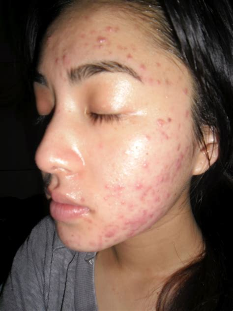5 days late and bad acne picture 3