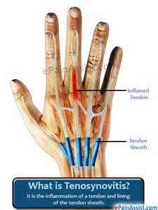 bone joint infection picture 10