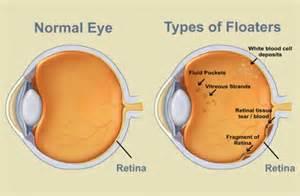 floaters in eye looks like smoke or fluid picture 3
