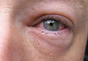 bacterial conjunctivitis and sore throat picture 9