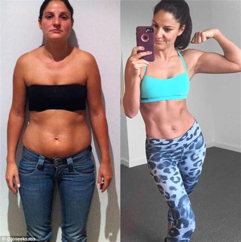 loose skin after weight loss picture 10