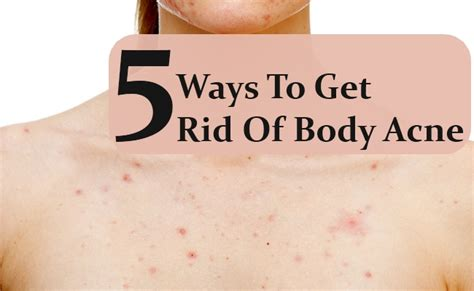 how to get ride if acne picture 3