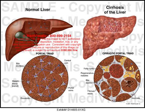 what causes sclerosis of the liver picture 15