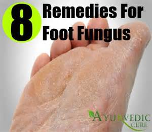 herbs for fungal infection in nigeria picture 6