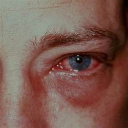 eye bacterial infections picture 9