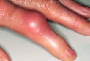 skin infection with knuckle pain picture 19