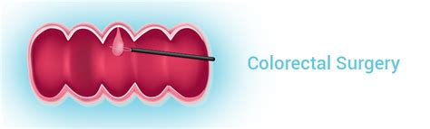 colon cancer cure rates picture 17
