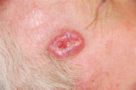 is there a natural cure for basal cell skin cancer picture 2