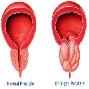 symptoms enlarged prostate picture 7